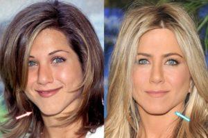 Jennifer Aniston implants, Jennifer Aniston face lift, Jennifer Aniston Chin implant