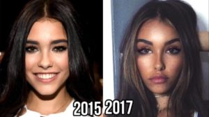 Madison Beer plastic surgery