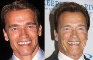 arnold schwarzenegger facelift, arnold schwarzenegger before and after