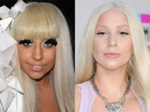 did gaga have a nose job, did lady gaga get a nose job recently, lady gaga before plastic surgery, lady gaga plastic surgery on nose