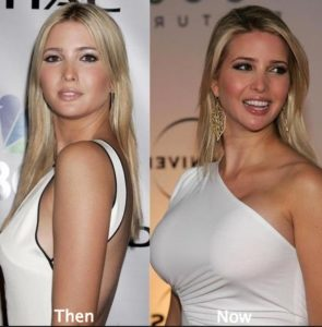 does ivanka trump have breast implants, ivanka trump boobs, ivanka trump breast augmentation, ivanka trump breast implants