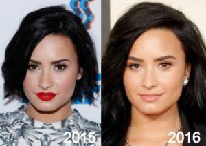 Demi Lovato Plastic Surgery