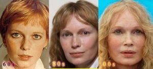 Mia Farrow Plastic Surgery