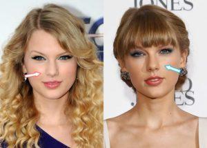 Taylor Swift Plastic Surgery