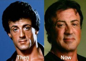 sylvester stallone botox, sylvester stallone face change