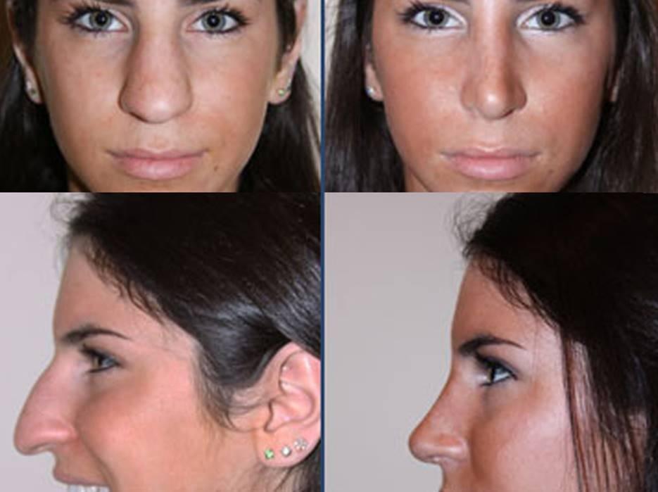 Jen Selter Plastic Surgery